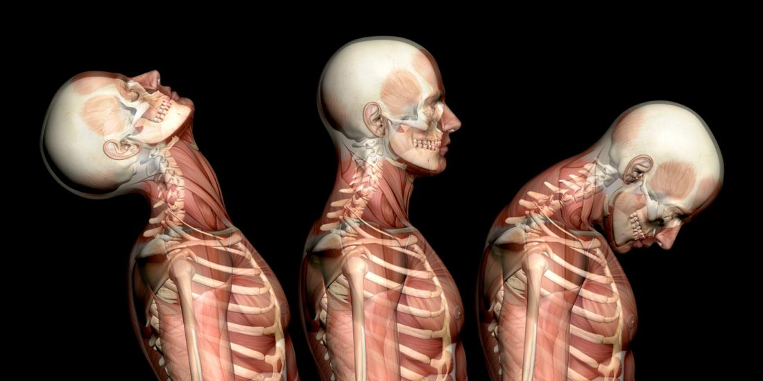 Chiropractic Treatment for Whiplash