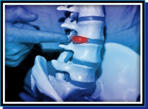 Chiropractor Treatment for Pinched Nerve | http://jsgchiro.com/