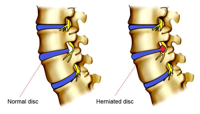 Normal and Herniated Disc